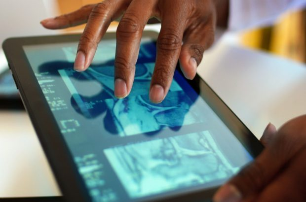 Closeup of doctor looking at CAT scan on digital tablet.