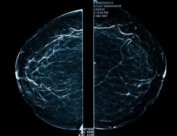 An image of a mammogram
